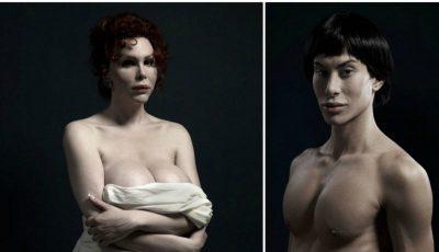 Imagini șocante ale victimelor operațiilor estetice