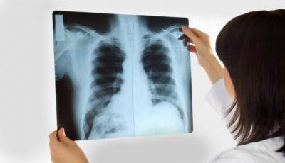 Tuberculoza – o amenințare pentru sănătatea publică la nivel global!