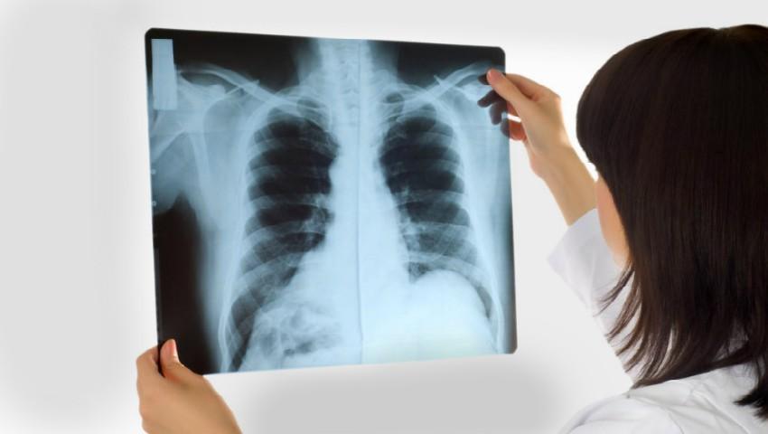 Foto: Tuberculoza – o amenințare pentru sănătatea publică la nivel global!