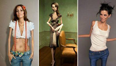 """Un proiect foto scandalos: """"Celebrtități bolnave de anorexie"""". Autorii explică de ce au subțiat corpurile vedetelor"""