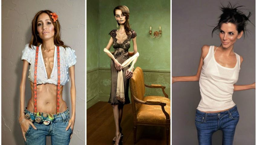 """Foto: Un proiect foto scandalos: """"Celebrtități bolnave de anorexie"""". Autorii explică de ce au subțiat corpurile vedetelor"""