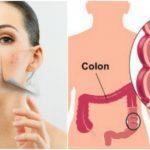 Foto: Ce legătură puternică există între sănătatea colonului și problemele tenului?