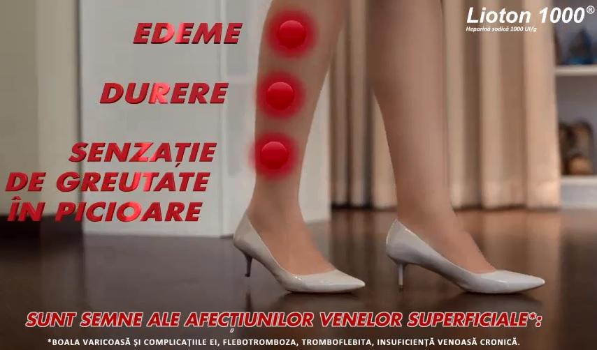 este posibilă abur cu picioarele varicoase)