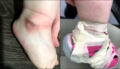 O fetiță care obișnuia să se descalțe, a fost torturată la grădiniță. Ce i-au făcut educatoarele?