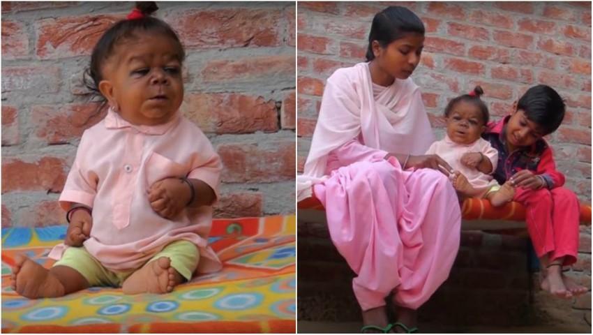 Foto: Un bărbat de 23 de ani arată ca un bebeluș din cauza unei rare boli genetice