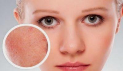 Ce este cuperoza: soluții eficiente pentru calmarea tenului sensibil predispus la roșeață și iritație!