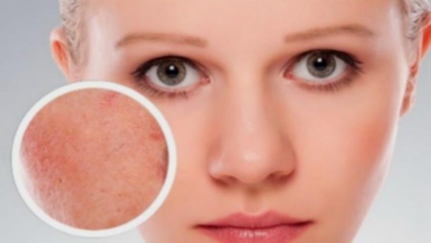 Foto: Ce este cuperoza: soluții eficiente pentru calmarea tenului sensibil predispus la roșeață și iritație!
