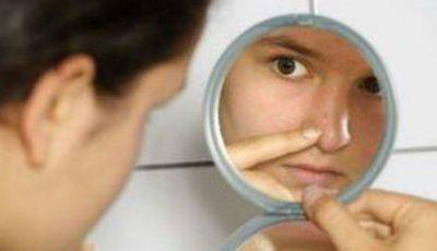Remedii naturiste pentru tenul cu porii dilatați