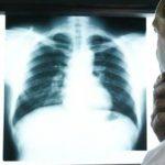 Foto: Un bărbat a trăit un an de zile cu un os de pui înfipt în plămân