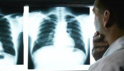 Un bărbat a trăit un an de zile cu un os de pui înfipt în plămân