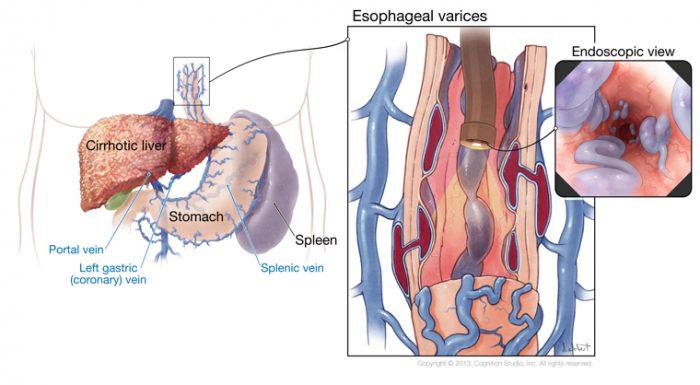începător varicoză diferită)