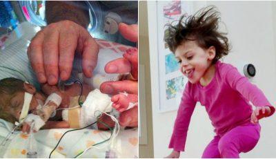 Povestea uluitoare a fetiței care s-a născut prematur, la 23 de săptămâni de sarcină. Jenuper a împlinit 7 ani