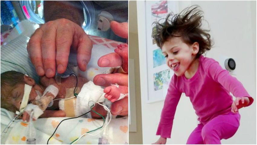 Foto: Povestea uluitoare a fetiței care s-a născut prematur, la 23 de săptămâni de sarcină. Jenuper a împlinit 7 ani