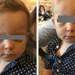 Foto: Un băiețel de 2 ani din Capitală, a fost bătut crunt de concubinul mamei sale