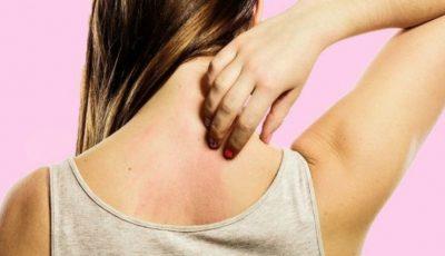 Boli pe care le poate anunța mâncărimea de piele sau pruritul