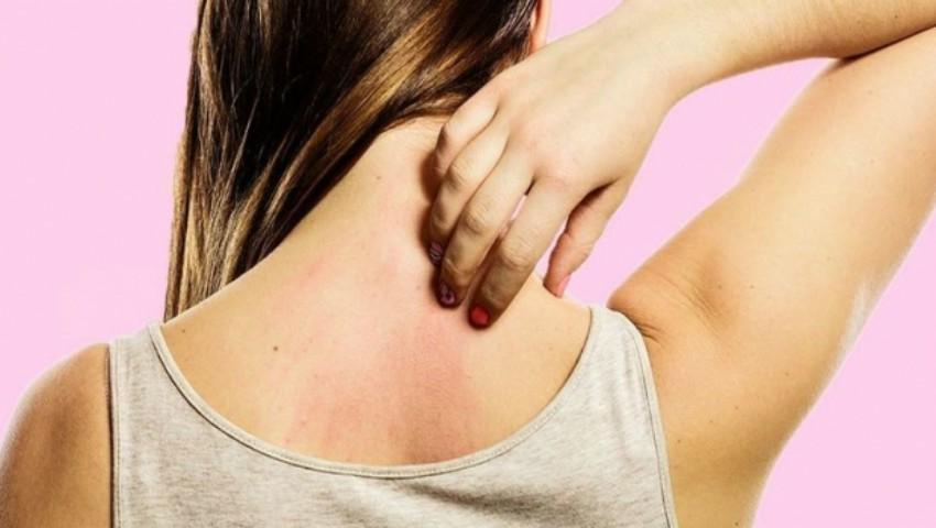 Foto: Boli pe care le poate anunța mâncărimea de piele sau pruritul