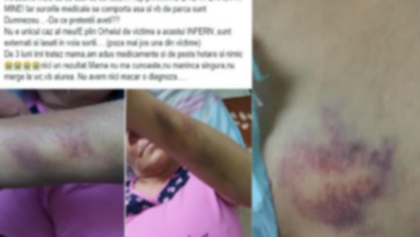 Foto: Bolnavi agresați fizic și înfometați la spitalul de psihiatrie din Orhei. Mărturiile rudei unei paciente