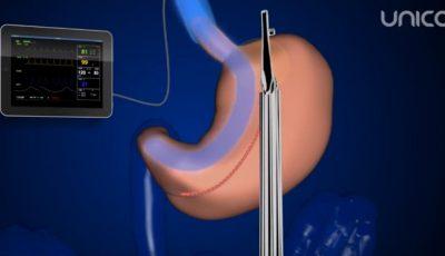 """Tratamentul obezității prin intervenția """"gastric sleeve"""" în chirurgia plastică a abdomenului ptozat"""