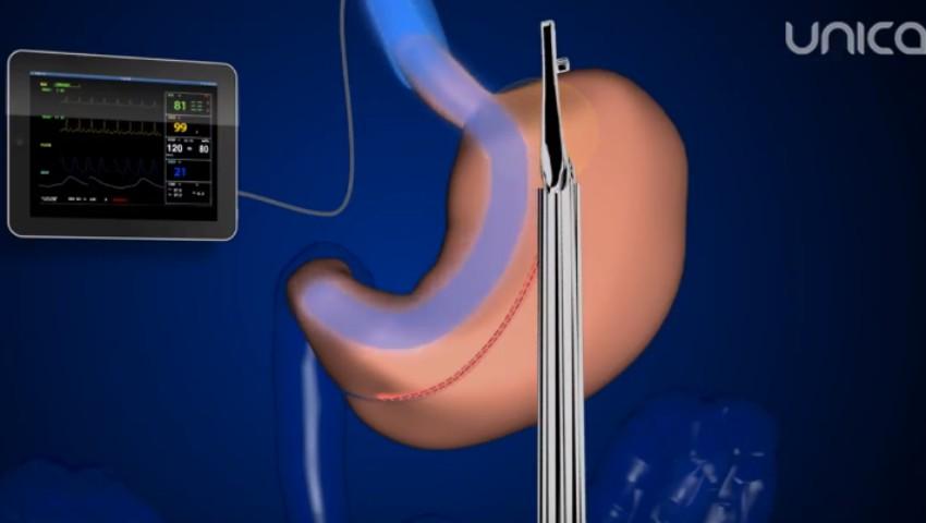 """Foto: Tratamentul obezității prin intervenția """"gastric sleeve"""" în chirurgia plastică a abdomenului ptozat"""