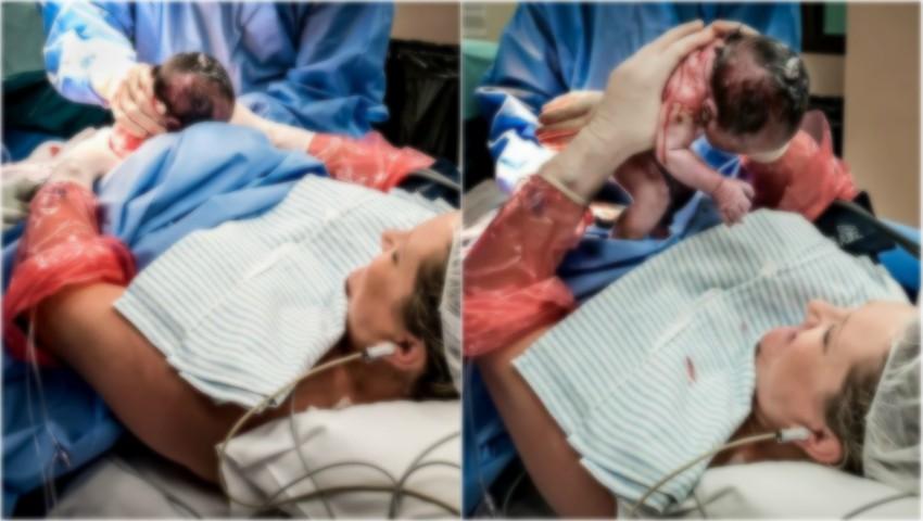 Foto: Această femeie și-a extras singură copilul din burtă în timpul nașterii prin cezariană