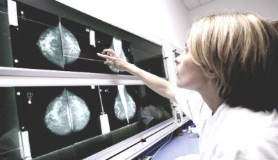 Efectuează gratuit o mamografie digitală! Iată când ajunge echipa mobilă în localitatea ta
