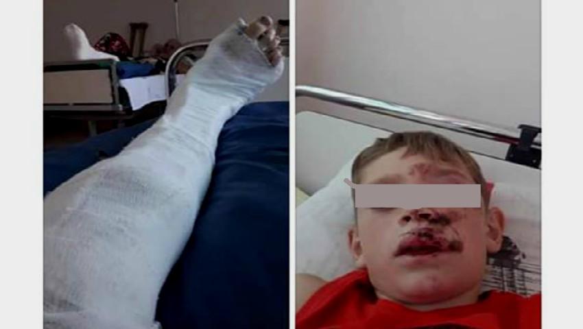 Foto: Un copil de 9 ani a ajuns în stare gravă la spital. Șoferul, care l-a accidentat, a scăpat basma curată