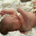 Foto: Caz medical rar. În România, s-a născut un bebeluş cu două penisuri