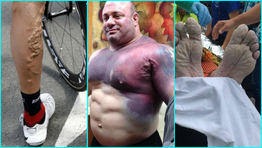 Foto: Sacrificiile uriașe din spatele performanței sportivilor. Imagini care dor!