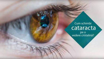 Tratamentul cataractei cu cristaline de ultima  generație