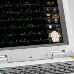 Foto: Două electrocardiografe de ultimă generaţie au ajuns la Institutul de Medicină Urgentă