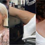 Foto: 7 celebrități care își poartă cu mândrie cicatricile