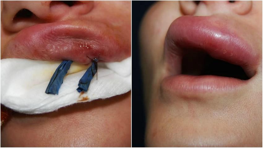 Foto: Injectări greșite cu botox. Iată la ce trebuie să fii atentă!