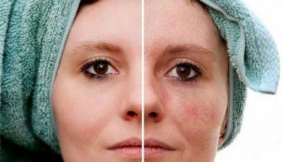 Remedii naturiste pentru petele pigmentare