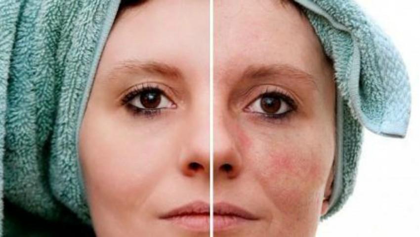 Foto: Remedii naturiste pentru petele pigmentare