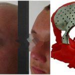 Foto: Premieră la Institutul de Medicină Urgentă. Unui tânăr i-a fost reconstruit parțial craniul din titan