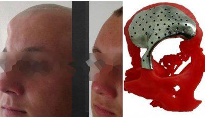 Premieră la Institutul de Medicină Urgentă. Unui tânăr i-a fost reconstruit parțial craniul din titan