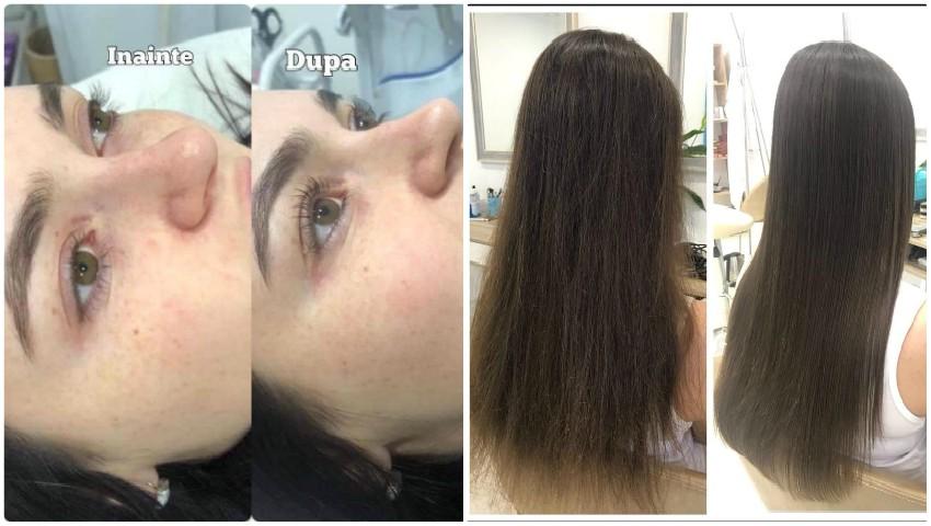 Foto: Iată unde poți găsi prețuri uimitoare la proceduri de estetică facială și corporală de calitate!