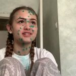 Foto: Vloggerița Iuliana Beregoi a luptat cu varicela. Cum se simte acum?
