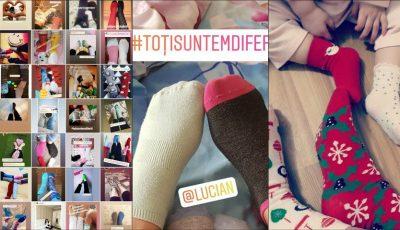 Un nou challenge circulă pe Instagramul moldovenesc. Internauții încalță ciorapi diferiți, în susținerea copiilor cu Sindromul Down