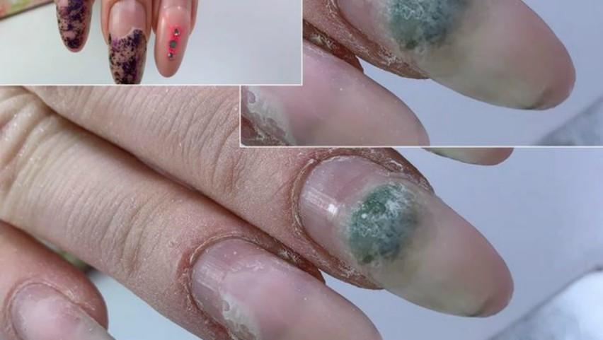 Foto: Complicațiile unghiilor false. Distrug unghia naturală și pot conduce la apariția mucegaiului sau onicomicozei
