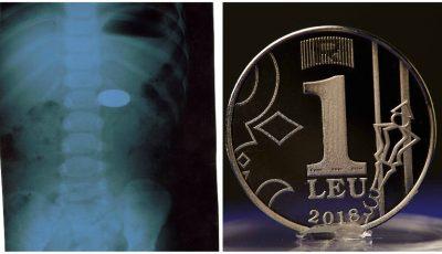 O fetiță de 2 ani din Chișinău a înghițit o monedă de 1 leu. Cum a fost salvată de medici?