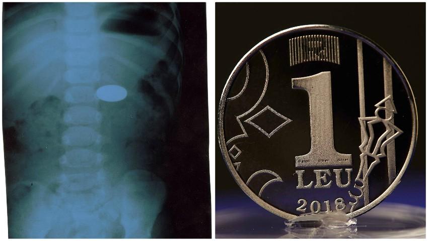 Foto: O fetiță de 2 ani din Chișinău a înghițit o monedă de 1 leu. Cum a fost salvată de medici?