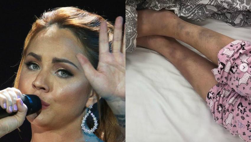 Foto: Interpreta rusă MakSim se află în stare critică în spital, după un accident de mașină