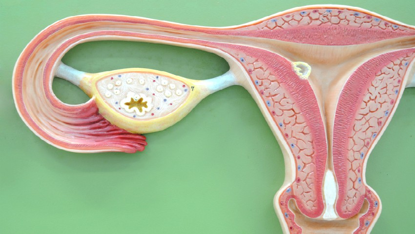Foto: Când este necesară histerectomia?