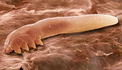 Pe pielea noastră trăiesc creaturi înfricoşătoare