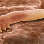 Foto: Pe pielea noastră trăiesc creaturi înfricoşătoare