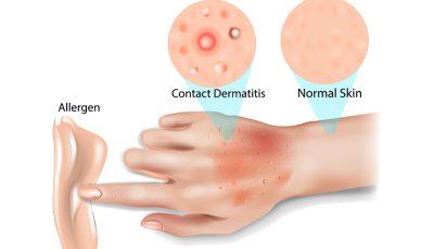 Topul obiectelor şi substanţelor ce pot cauza dermatita de contact