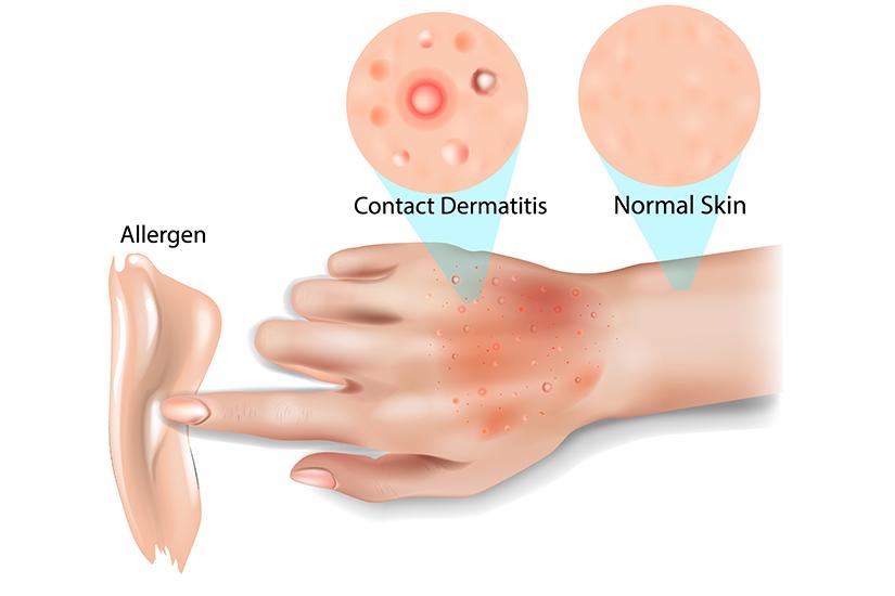 Foto: Topul obiectelor şi substanţelor ce pot cauza dermatita de contact