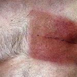 Foto: Cum recunoști cancerul de sân la bărbați ?