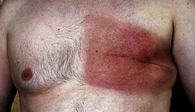 Cum recunoști cancerul de sân la bărbați ?
